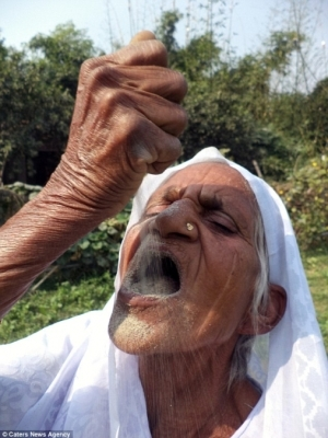Bizarre Story Of A Woman Who Eats Sand And Gravel (Photos)